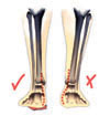 Poor leg alignment corrected with orthotics
