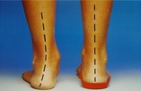Poor foot alignment corrected with orthotics