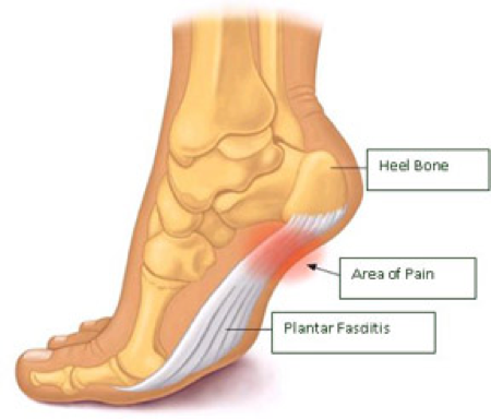 Painful sole of the foot