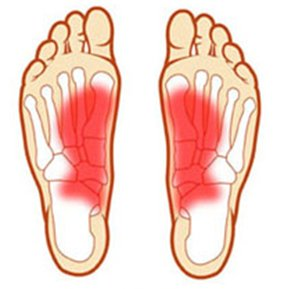 Painful feet caused by foot problems