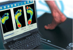 Foot analysis