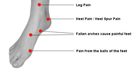 Problems areas on the foot